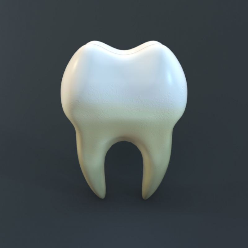 Lavsky 3d Human Tooth